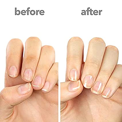 removing press on nails  befor and after